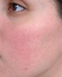hogyan lehet eltávolítani az arcon lévő vörös foltokat a könnyektől