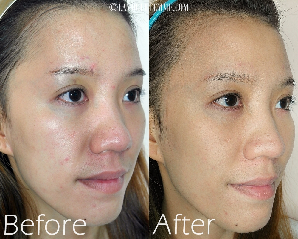 Customized-La-Belle-Ampoules-For-Combination-Acne-Prone-Skin-Before-After-Side