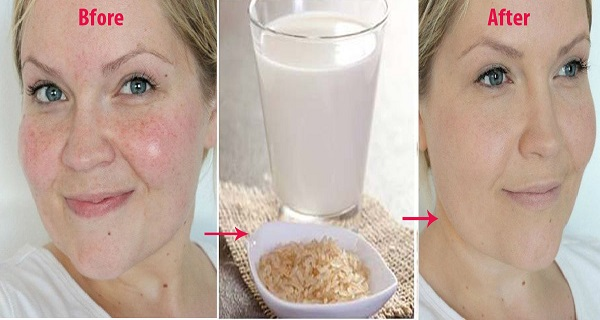 treats-skin-problems-Miracle-benefits-of-Rice-Water-2